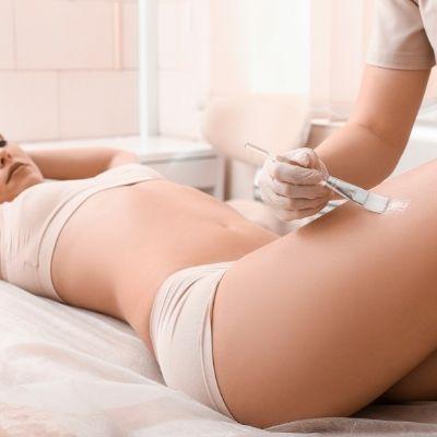 Cómo eliminar la celulitis en las piernas que tanto odias